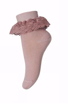 Sokker med blondekant
